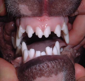 Linguoverted mandibular canines
